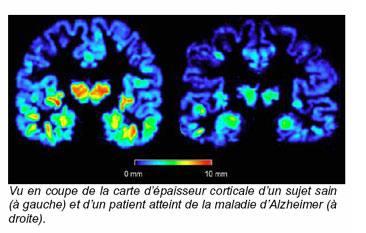 Vers une détection anticipée de la maladie d'Alzheimer ?