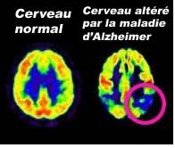 Alzheimer : découverte de la « protéine de l'oubli » - Source de l'image:http://www.rfi.fr