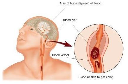 Accidents cardio-vasculaires : agir vite pour une meilleure prise en charge - Source de l'image:http://www.freeknights.com