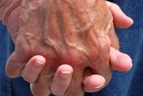 Mobilisation générale pour la Journée mondiale de la maladie d'Alzheimer - Source de l'image : http://images.vedura.fr/