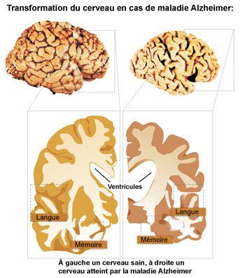 Alzheimer : Le cerveau se rétrécit 10 ans avant le diagnostic - Source de l'image: http://storage.canalblog.com